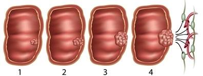 Vastagbél daganatok, vastagbélrák tünetei, vizsgálata
